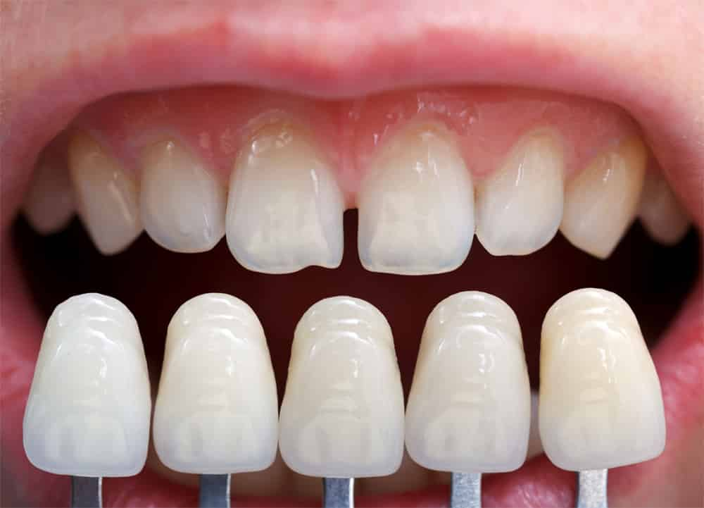 Cosmetic Dentistry Providers WITH VENEER