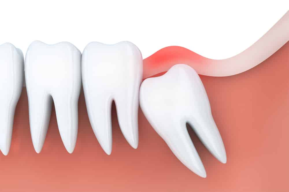 The Purpose Of The Wisdom Tooth