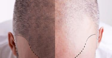 Should You Opt For A Hair Transplant In 2019?