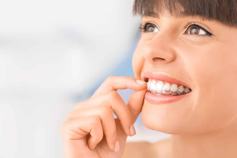 Invisalign Invisible Braces - What You Need to Know