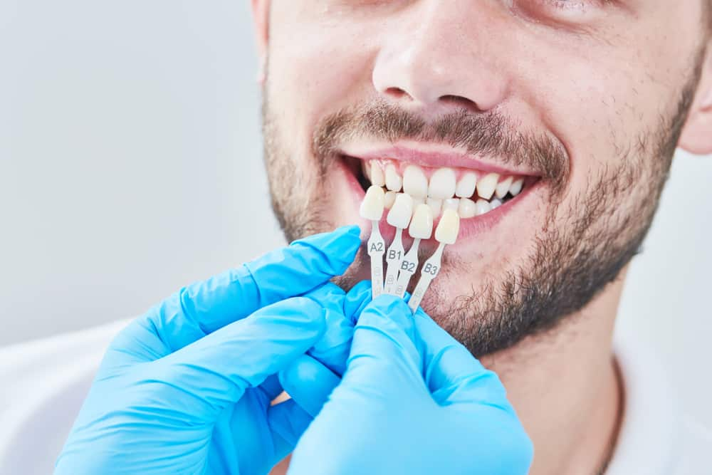 Benefits of Online Dental Restorations