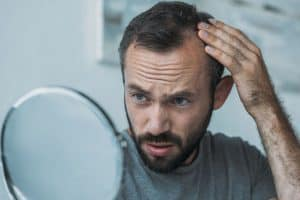 Baldness Is More than Just Genetics