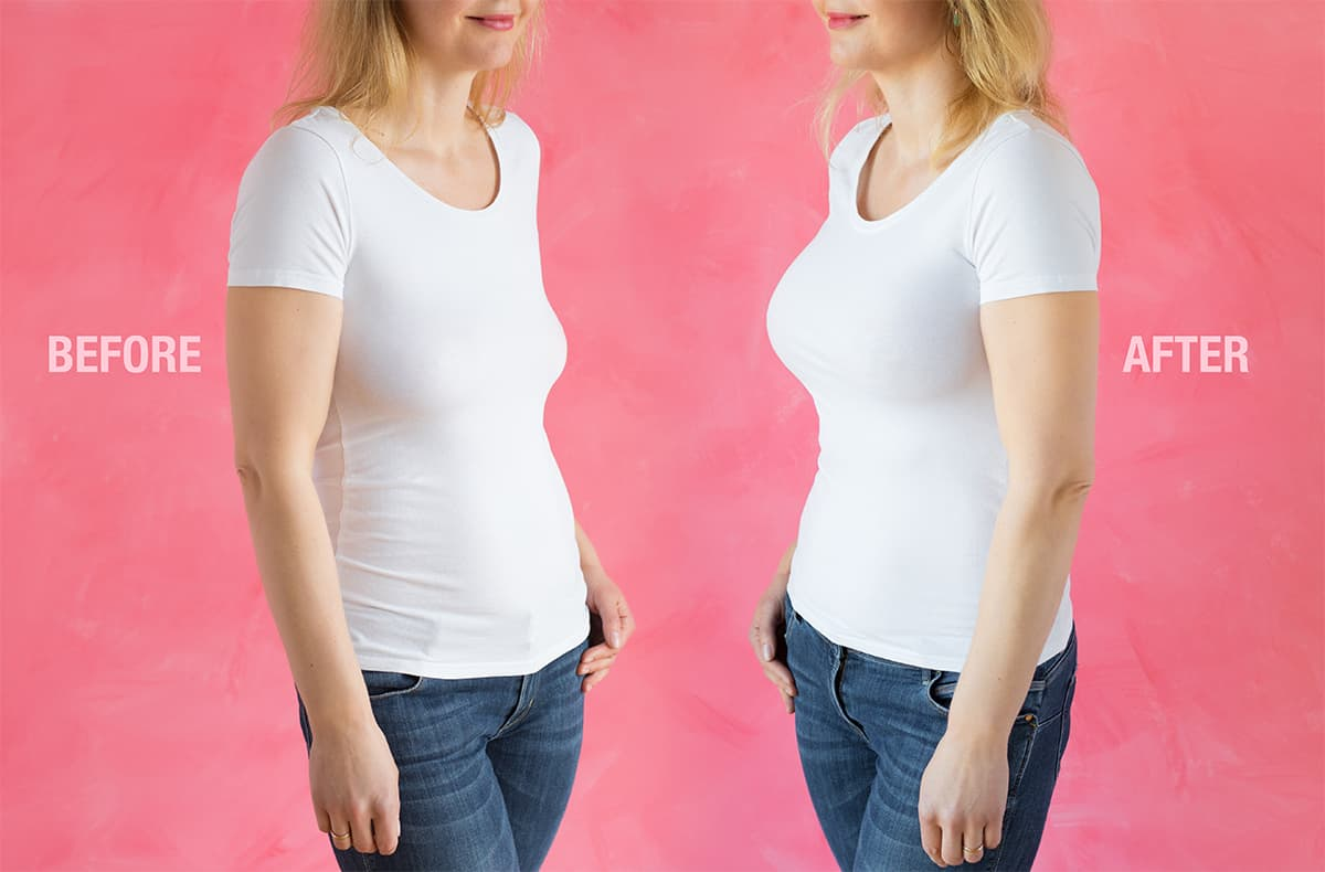 Breast Implantation Before and After