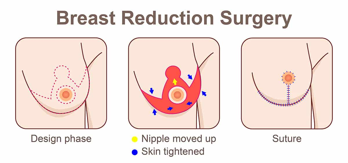 Breast Reduction Surgery Types