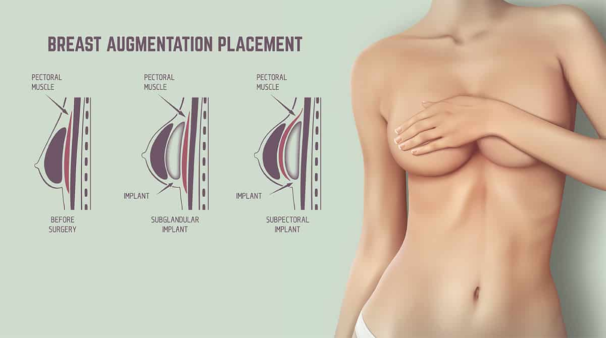 contraindications of breast augmentation
