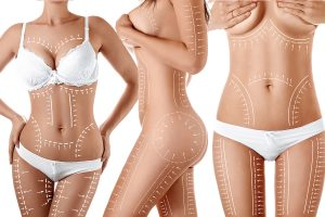 Liposuction - Everything, Types, Safety