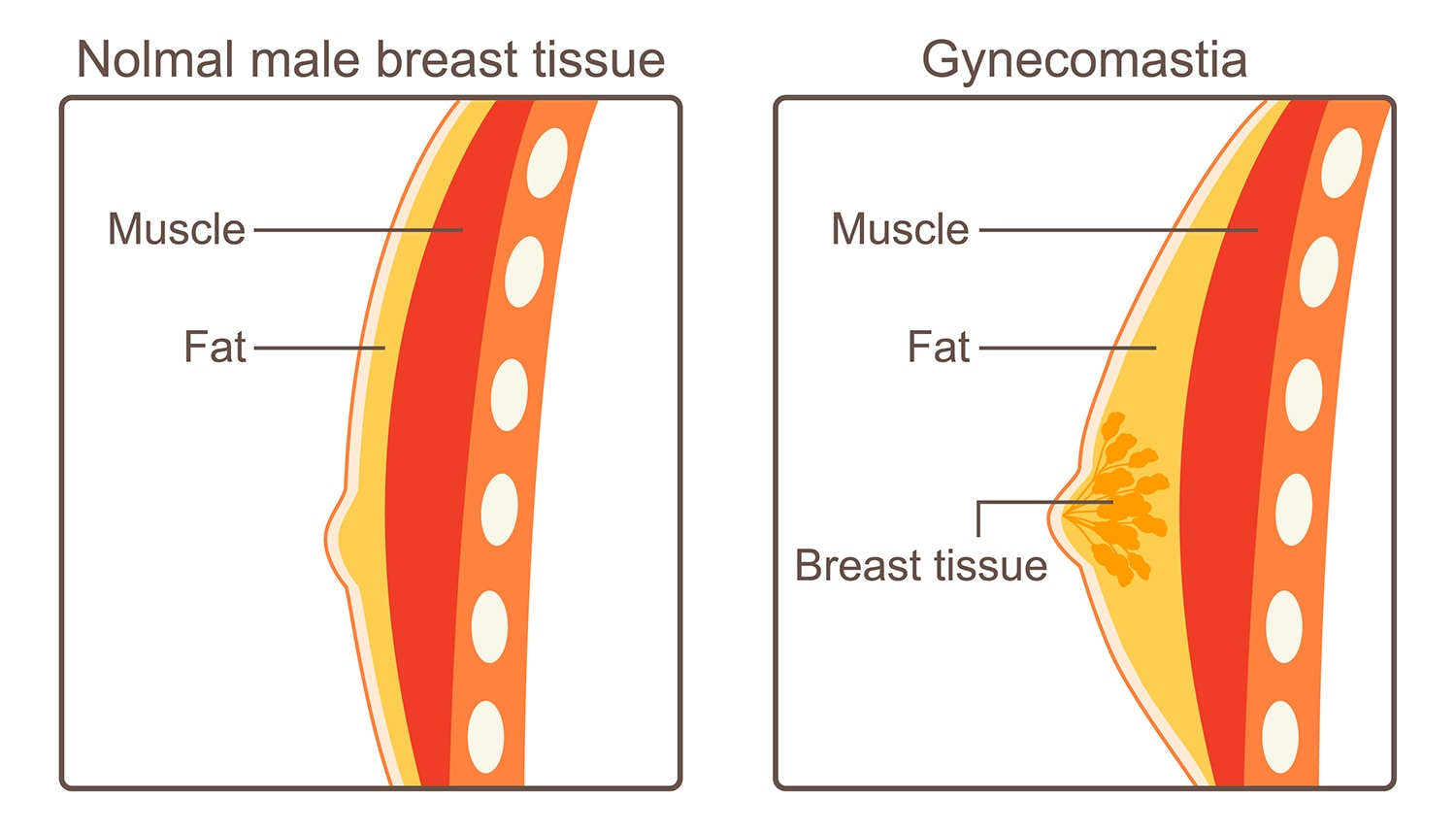 Male normal chest tissue and Gynecomastia